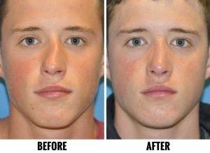 cleveland rhinoplasy nosejob surgeon sample 01a