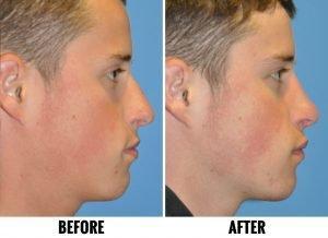cleveland rhinoplasy nosejob surgeon sample 01b