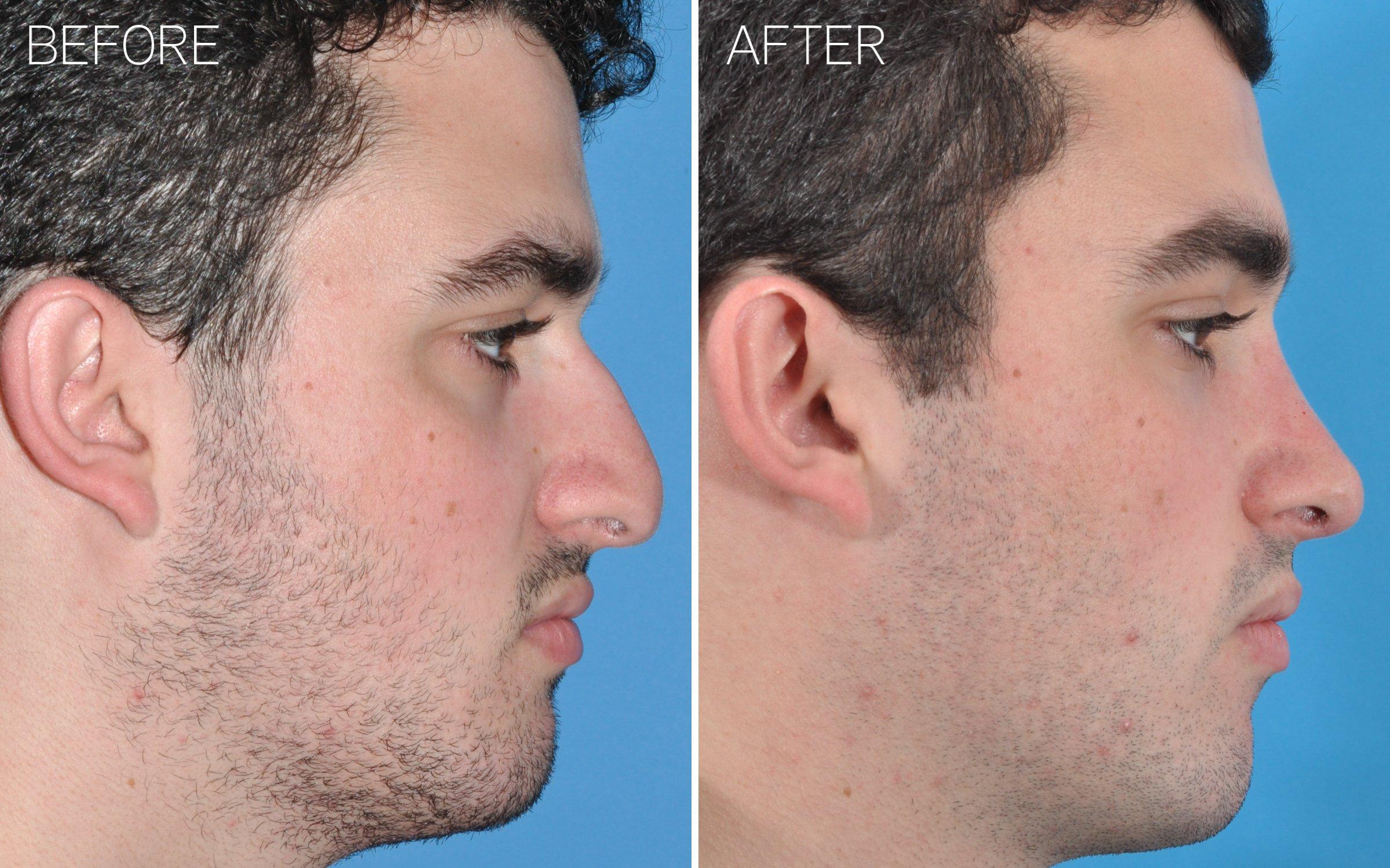Rhinoplasty, Nose Job