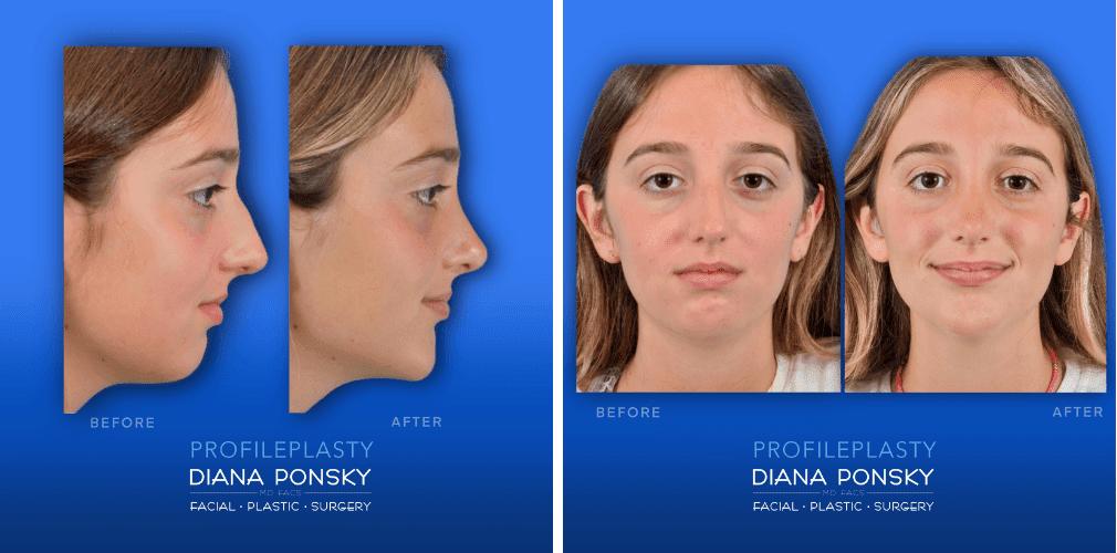 Profileplasty Dr Diana Ponsky Facial Plastic Surgery