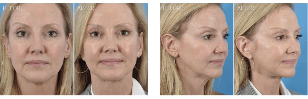 facelift cleveland facial plastic surgery
